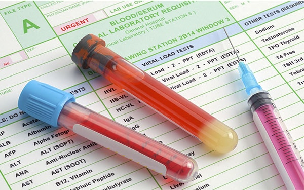 test antidroga lavoro obblighi e sanzioni
